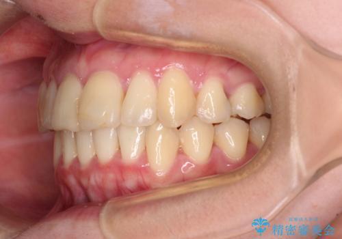 上下前歯のデコボコをきれいに インビザラインによる矯正治療の治療後