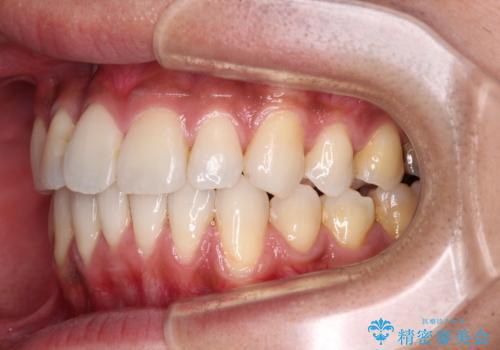 上顎の狭い歯列をインビザラインで拡大の治療後