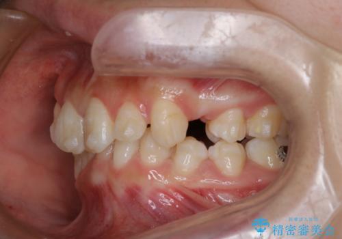 【インビザライン】抜歯矯正の治療中