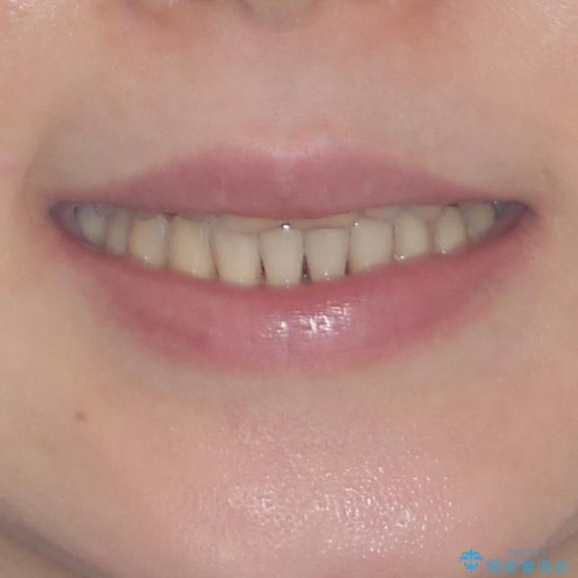 どこで咬んで良いのか分からない インビザラインでの咬み合わせの改善の治療後(顔貌)