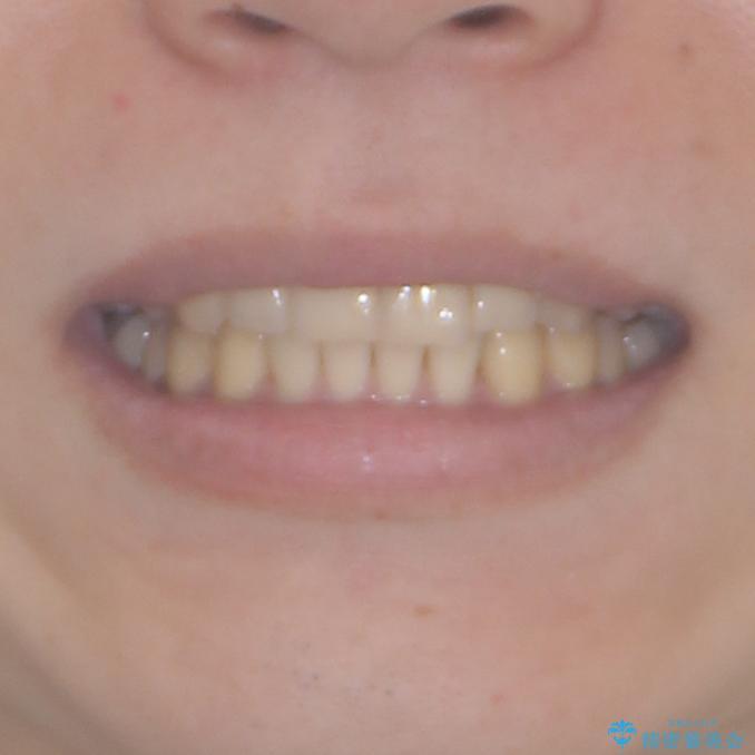 気になる八重歯を抜歯 補助装置を用いたインビザライン矯正の治療後(顔貌)