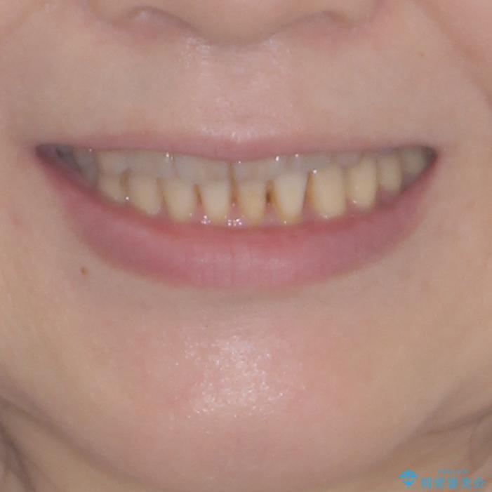 前歯のクロスバイトを治したい インビザラインによる矯正治療の治療後(顔貌)