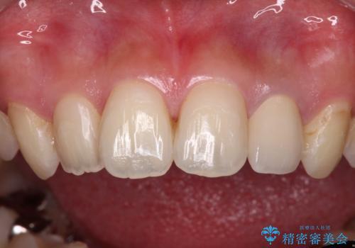 むし歯で変色した前歯をセラミッククラウンできれいにの治療後