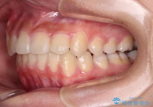 急速拡大装置で狭い歯列を骨格ごと改善 ワイヤー装置による矯正治療の治療後