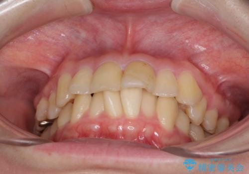上下前歯のデコボコをきれいに インビザラインによる矯正治療の治療前