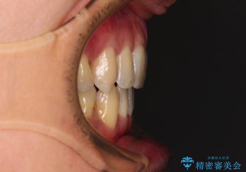 掃除しにくい前歯と閉じにくい口元 目立たないワイヤー装置での抜歯矯正の治療後