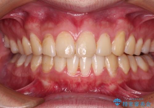 気になる前歯を治したい 短期間でのインビザライン矯正の治療後