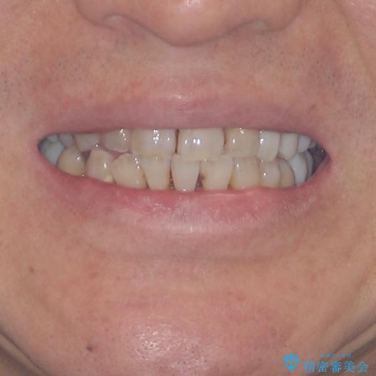 歯並びや奥歯の痛み 色々と治したい 総合歯科診療の治療後(顔貌)