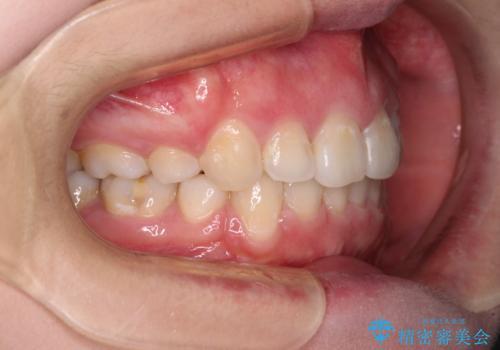 ふっくらとした口元を改善したい 目立たないワイヤー装置による抜歯矯正の治療後
