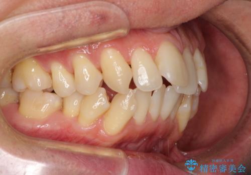 掃除しにくい前歯と閉じにくい口元 目立たないワイヤー装置での抜歯矯正の治療前