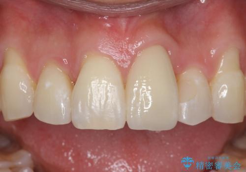 前歯の虫歯 矯正治療してからしっかり治すの治療後