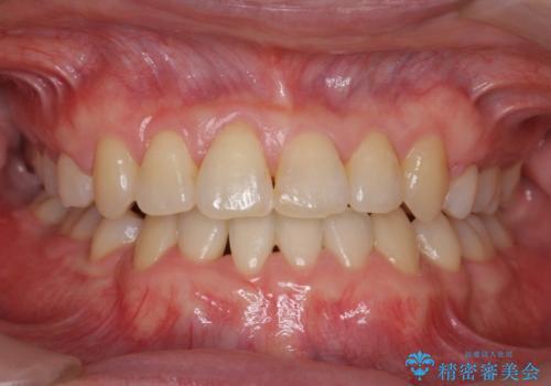 受け口 絶対に顎の手術はしたくないの症例 治療後