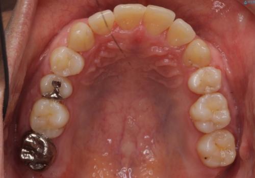 受け口 絶対に顎の手術はしたくないの治療後