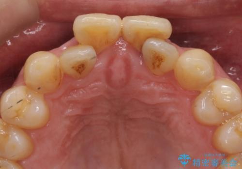 前歯の虫歯 矯正治療してからしっかり治すの治療前