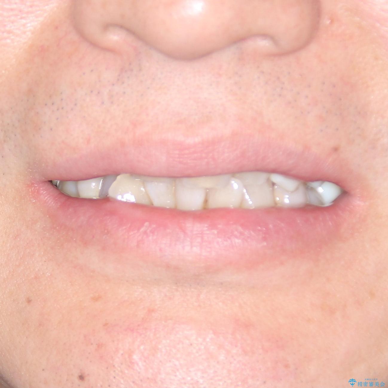 歯並びや奥歯の痛み 色々と治したい 総合歯科診療の治療前(顔貌)