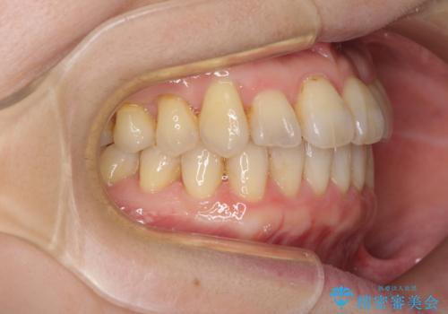 前歯のクロスバイトを治したい インビザラインによる矯正治療の治療中