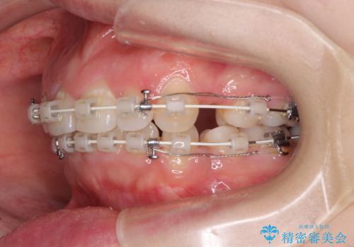 ふっくらとした口元を改善したい 目立たないワイヤー装置による抜歯矯正の治療中