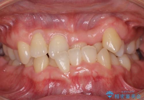 受け口 絶対に顎の手術はしたくないの症例 治療前