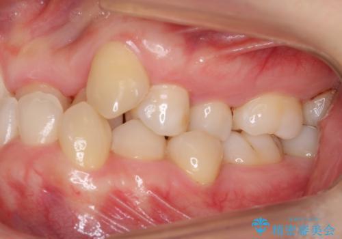 受け口 絶対に顎の手術はしたくないの治療前