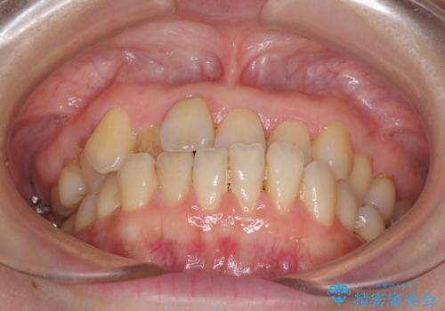 前歯のクロスバイトを治したい インビザラインによる矯正治療の治療前