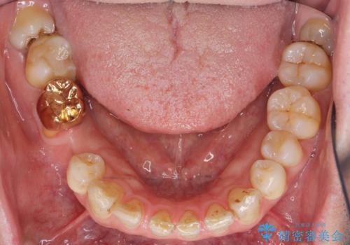 親知らずのせいで隣の歯が虫歯に 40代男性の治療前