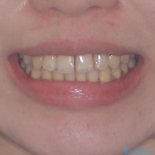 できる限り短い期間で終えたい ワイヤー矯正による咬み合わせの改善の治療後(顔貌)