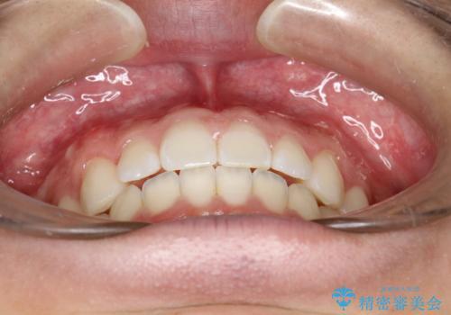 前歯の隙間がきになる インビザラインですきっ歯の治療の治療後