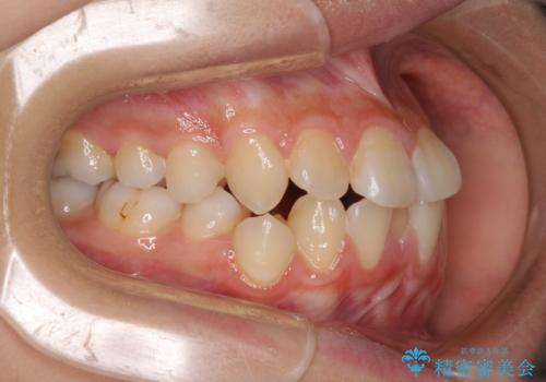 急速拡大装置で狭い歯列を骨格ごと改善 ワイヤー装置による矯正治療の治療前