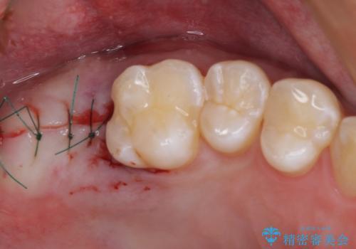 歯に穴を開けられてしまった インプラントによる奥歯の補綴治療の治療中
