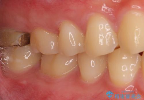 歯に穴を開けられてしまった インプラントによる奥歯の補綴治療の治療前