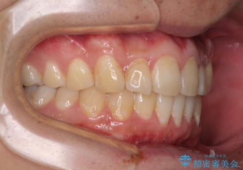 気になる前歯を治したい 短期間でのインビザライン矯正の治療中