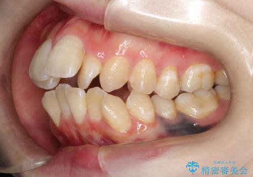 重度のガタガタ ワイヤーによる抜歯矯正の治療前
