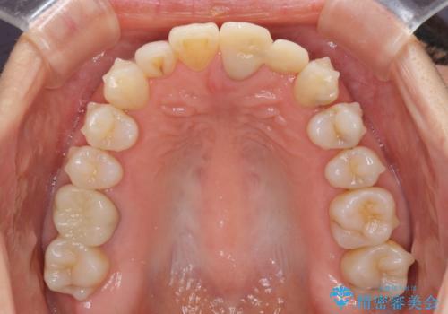 口元の突出感を治したい 治療中の歯も治したいの治療中