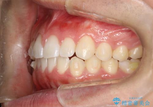 前歯の隙間がきになる インビザラインですきっ歯の治療の治療中