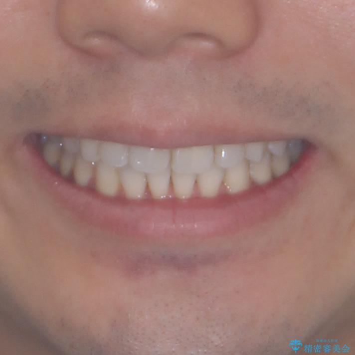 上顎の狭い歯列をインビザラインで拡大の治療後(顔貌)