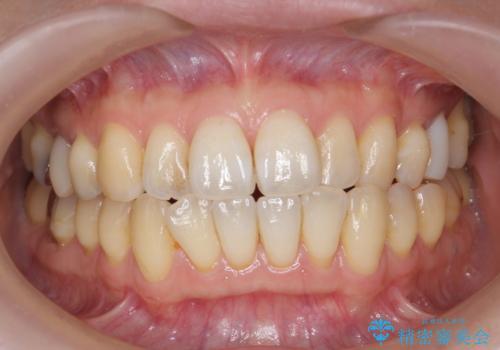 オフィスホワイトニングで白い歯に!の治療前