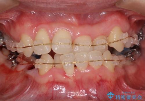 受け口 絶対に顎の手術はしたくないの治療中