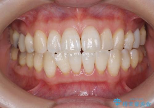 オフィスホワイトニングで白い歯に!の治療後