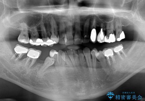 歯並びや奥歯の痛み 色々と治したい 総合歯科診療の治療前