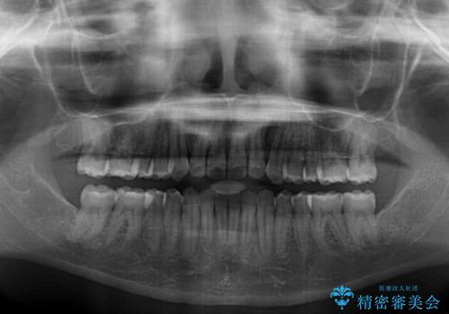 できる限り短い期間で終えたい ワイヤー矯正による咬み合わせの改善の治療後