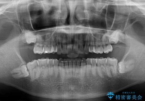 気になる八重歯を抜歯 補助装置を用いたインビザライン矯正の治療後