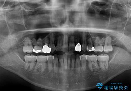 結婚式までに前歯をきれいにしたい 抜歯矯正とオールセラミッククラウンの治療後