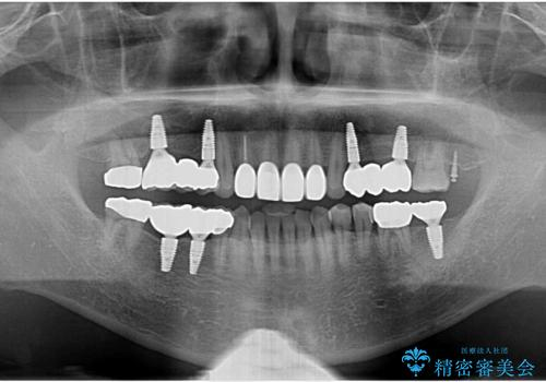 インプラント治療・セラミック治療を含む  全顎的虫歯治療の治療後