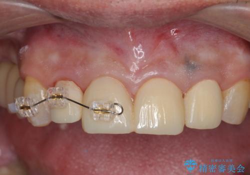 インプラント治療・セラミック治療を含む  全顎的虫歯治療の治療中