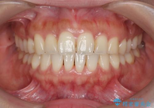 前歯のガタつきを治す マウスピース矯正治療の症例 治療後