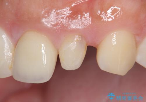 [ 歯が小さい ] 根管治療を伴う矮小歯治療の治療前