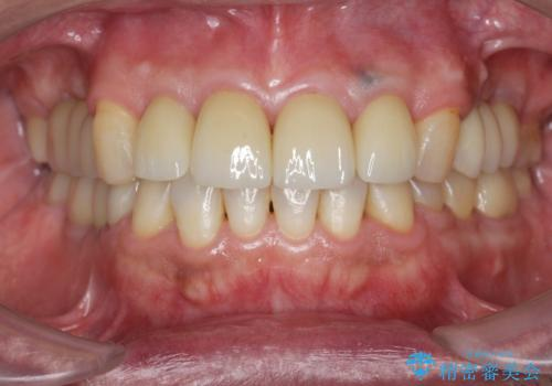 インプラント治療・セラミック治療を含む  全顎的虫歯治療の症例 治療後