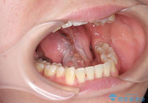 [ 舌小帯の形成 ]滑舌を改善したいの治療後