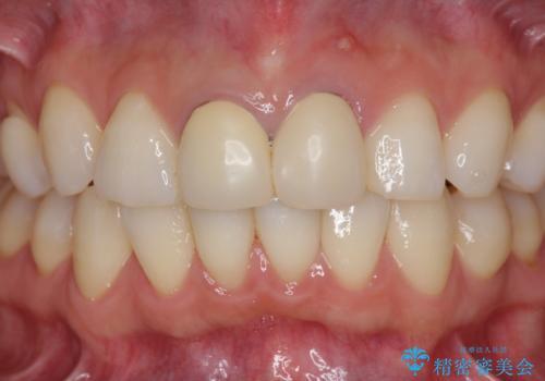 前歯が疼く セラミッククラウンのやり替えの治療前