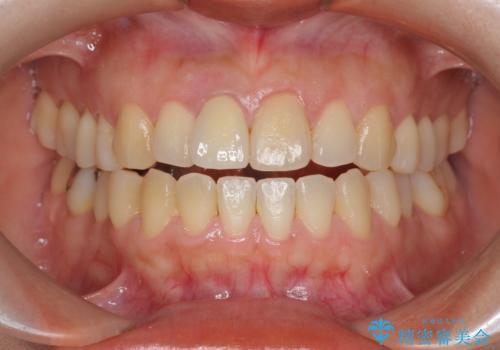 オーダーメイドで造る、自然な前歯セラミッククラウンの治療後